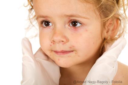 hutausschlag-bei-kindern